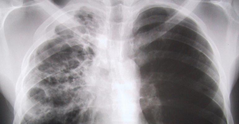 tuberculoza provoacă pierderea în greutate
