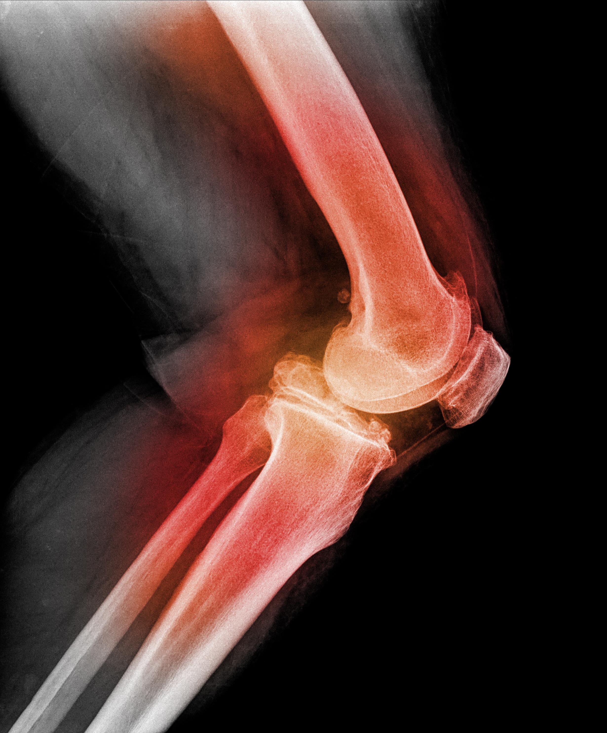 dezvoltarea artritei genunchiului durere articulară de cânepă