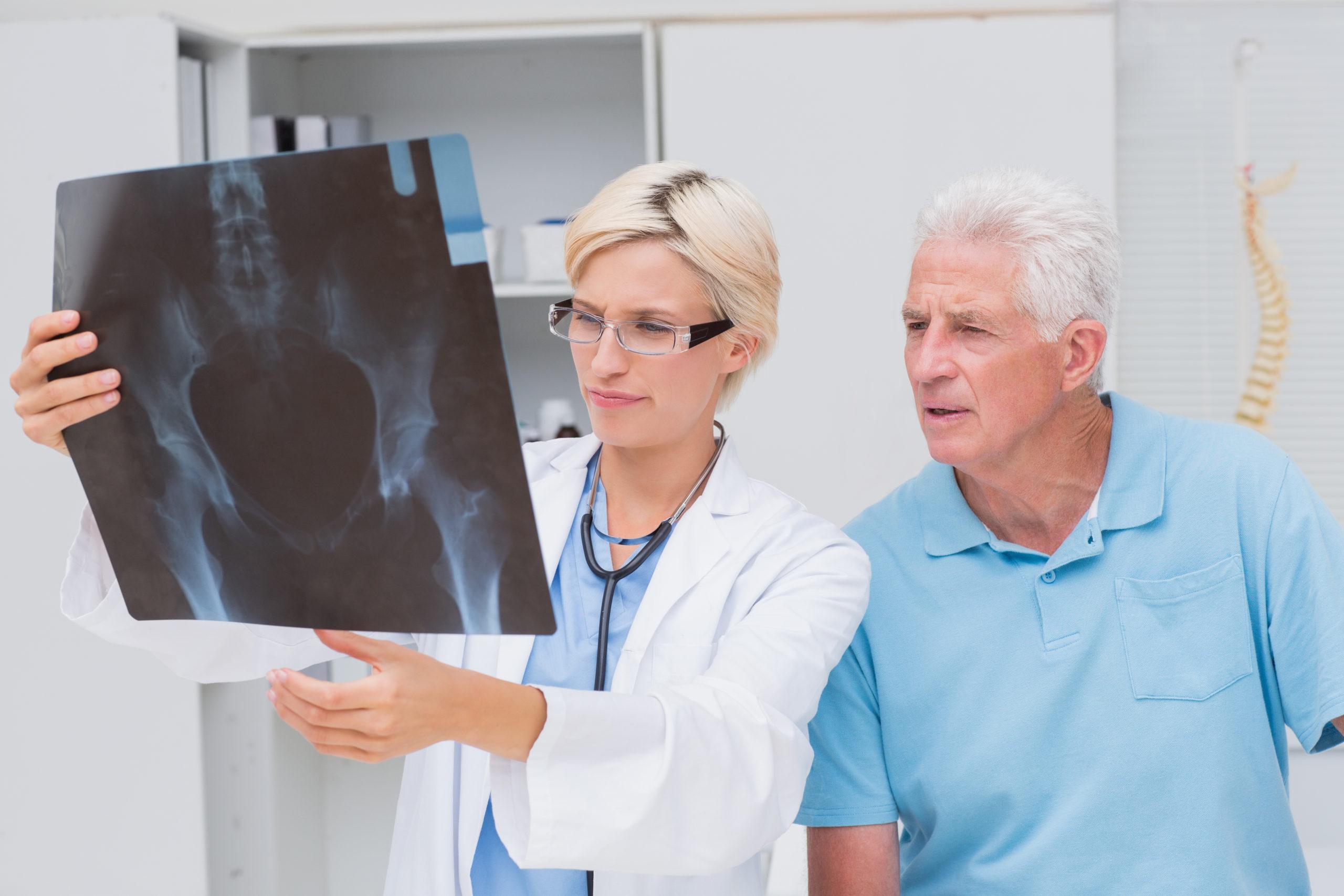 refacerea fracturilor de șold